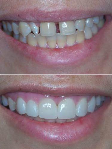 تجميل الاسنان بالفينير Veneer اسرع من التقويم