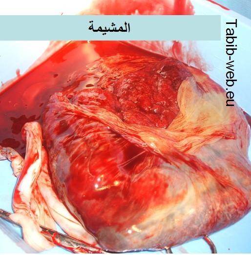 صور الولاده الطبيعيه حقيقيه hwaml.com_1303902342
