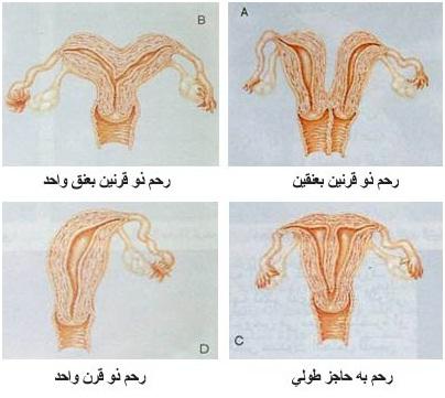 أسباب العقم و تأخر الإنجاب:عند الرجل والمرأة