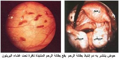 دوالي الرحم مرض نادر قد يصيب أي سيدة فإحذري منه! | Sohati.com | موقع صحتي