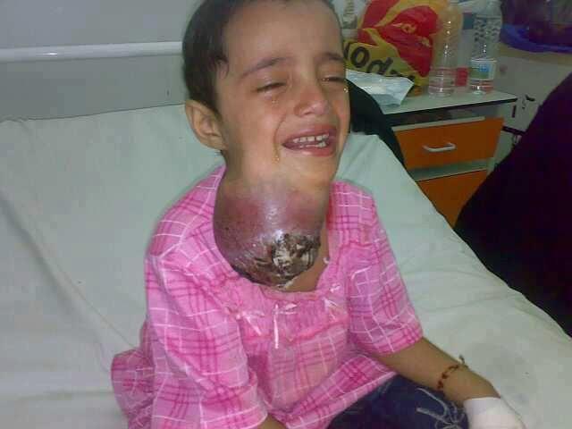 طفله ابكت صورها قلبي الله يشافيها hwaml.com_1335631589