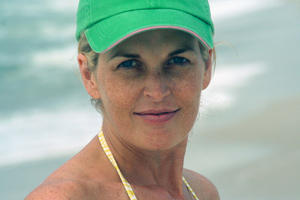 اسباب الوجه معلومات النمش علاج