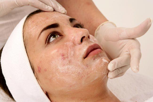 Las variedades del acné de la foto